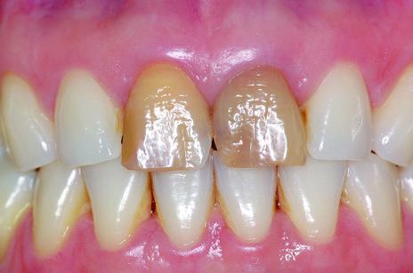 dente central escuro