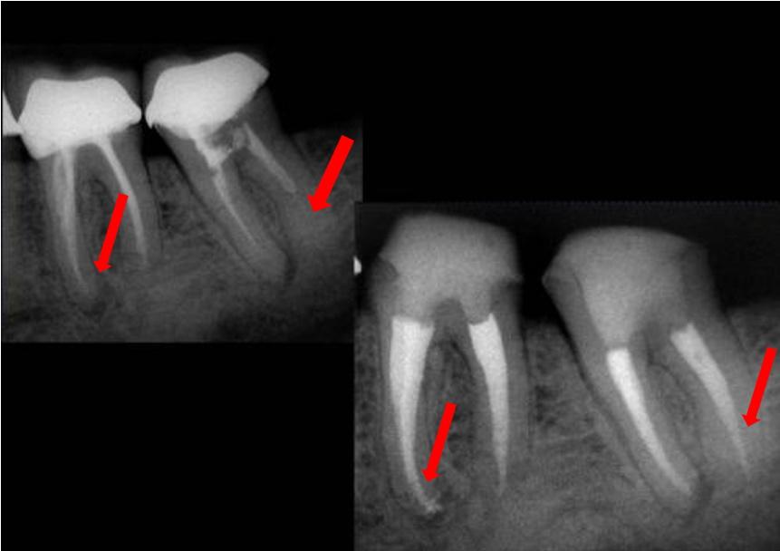 dente de canal mal feito